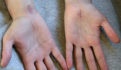 Carpal tunnel scars