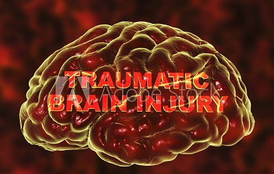 Avoiding Relapse after a Traumatic Injury